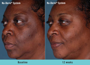 Share facial peel system thank