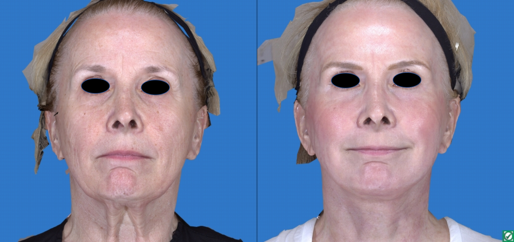 Co2 Laser Skin Rejuvenation Pasadena La Canada Los Angeles La