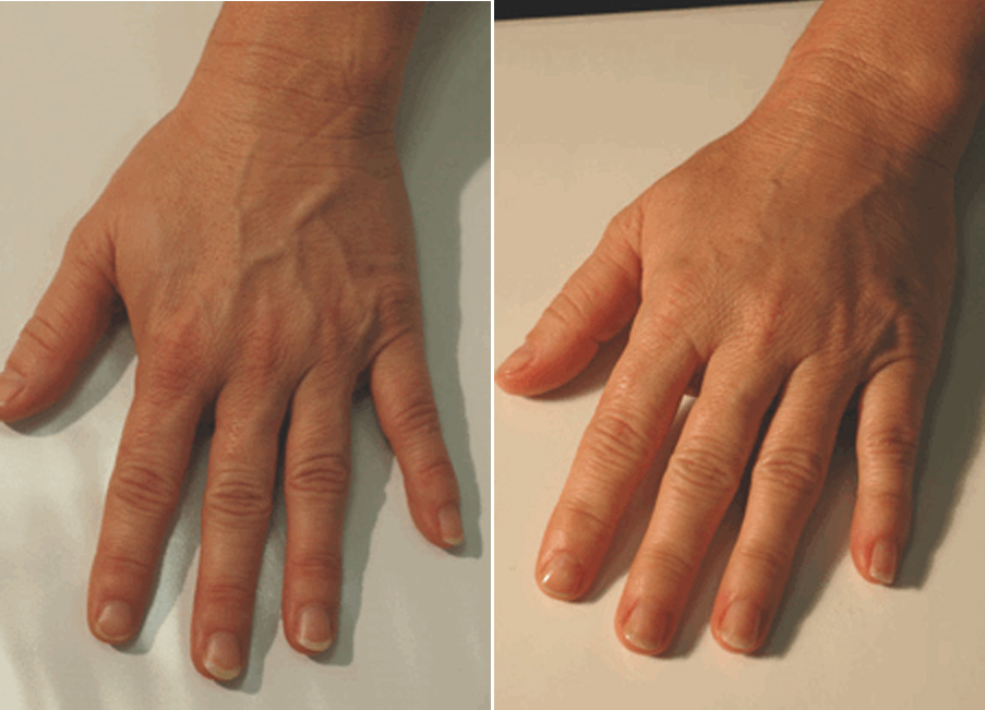 Hand Rejuvenation Pasadena La Canada Los Angeles LA CA