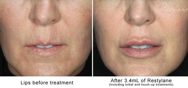 laser skin treatment side effects